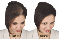 Vorher-Nachher-super-million-hair